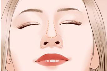 棗莊礦務局醫院歪鼻矯正手術讓鼻子更立體