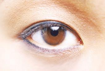 眼袋切除手術讓眼睛美麗依舊