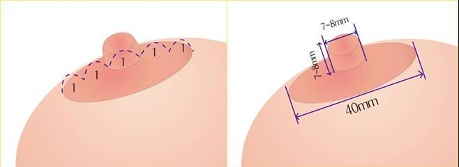 哪些女性是需要做乳暈再造手術的呢