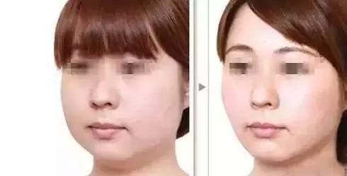 湖南韓美溶脂針瘦臉有什么優勢呢