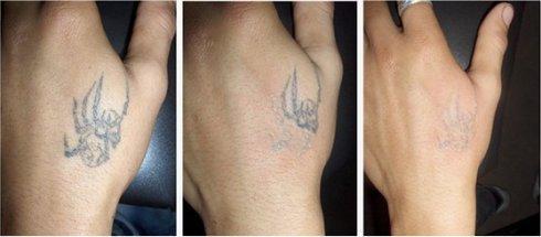 西安鵬愛激光器洗紋身疼嗎