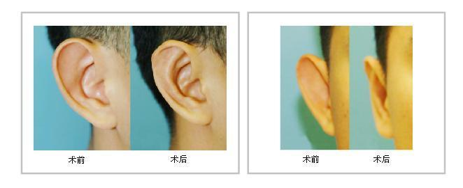 西安鵬愛招風耳矯正效果好嗎