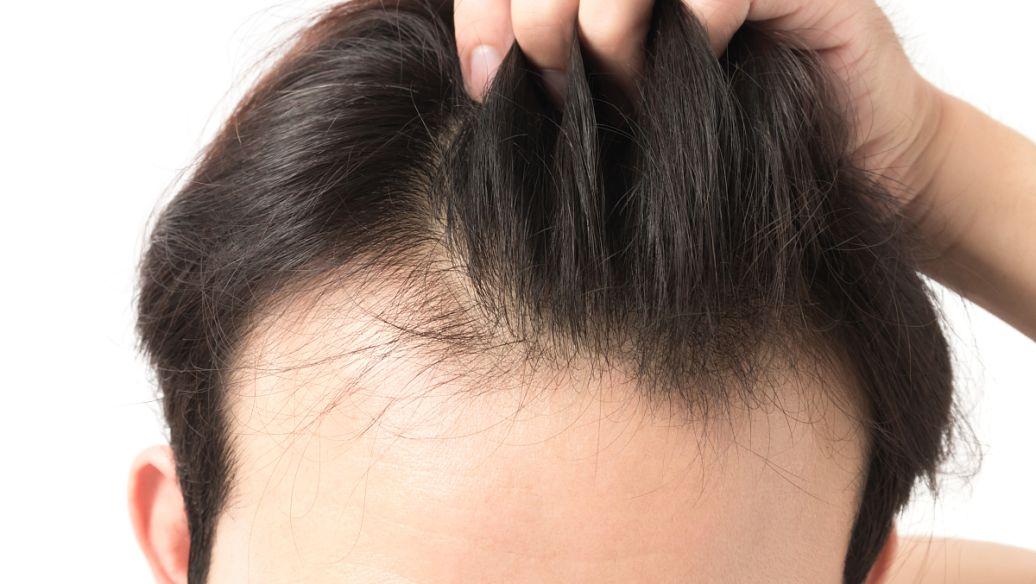 湖南韩美头发种植优势