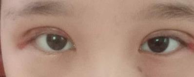 眼綜合拯救了我的正泡眼,選擇醫生是關鍵