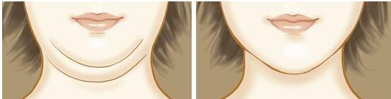 如何能不节食、不锻炼就可以消除掉我们的双下巴