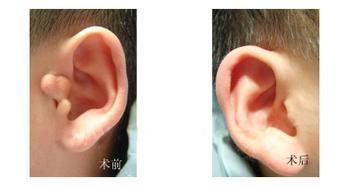西安鹏爱隐耳整形手术后的特点