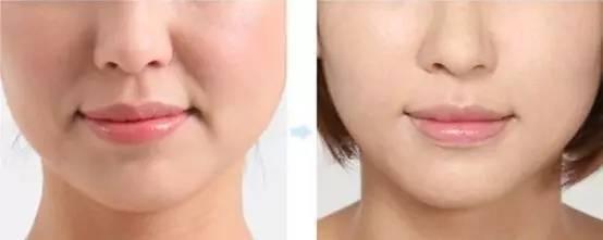 西安鵬愛自體脂肪注射祛皺法令紋效果怎么樣