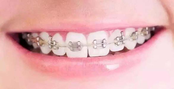 西安鵬愛牙齒矯正的優點有哪些