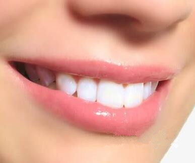 深圳微姿牙齿矫正疼痛感觉到吗