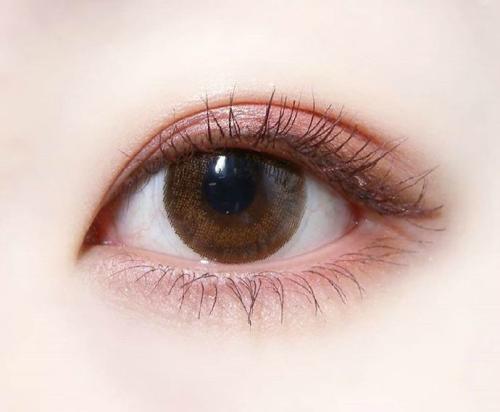 雙眼皮失敗修復手術有可怕嗎