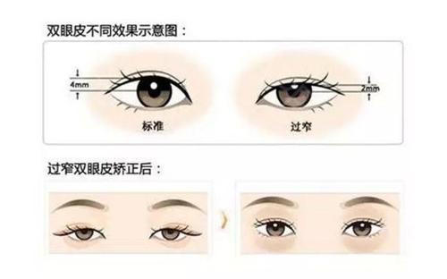 哪些表现证明双眼皮手术失败了?