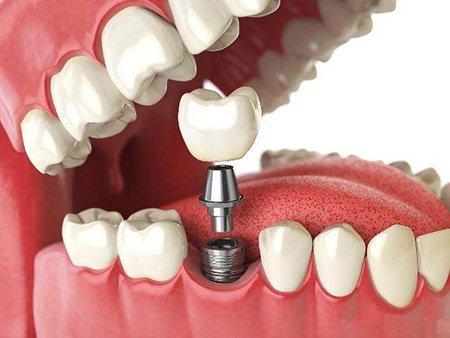 西安鵬愛種植牙的優勢有哪些