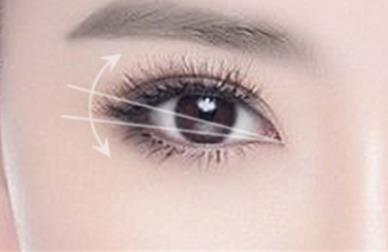 杭州埋线双眼皮适合眼睛基础好的人群