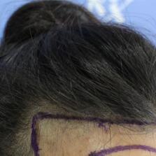 发际线种植过后脑门不在光光的了