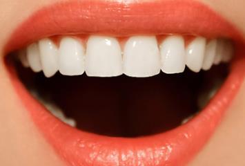 成都冷光美白牙齒常見問答