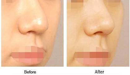 安康永秀墊鼻尖優勢是什么