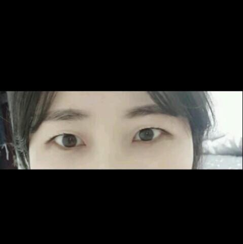 双眼皮手术之后眼睛变得更加的漂亮