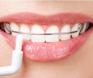 """南寧牙齒矯正讓你的牙齒""""回歸正途"""""""