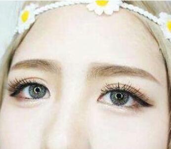 激光去黑眼圈能保持多久