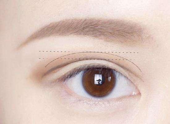 安康永秀雙眼皮失敗修復術有哪些優勢