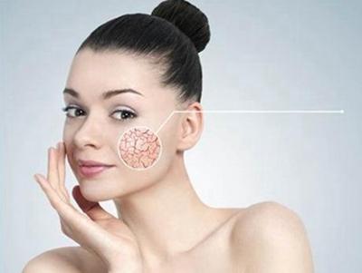 射頻除皺可以維持3年之久