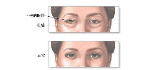 长沙星雅去眼袋手术能维持几年