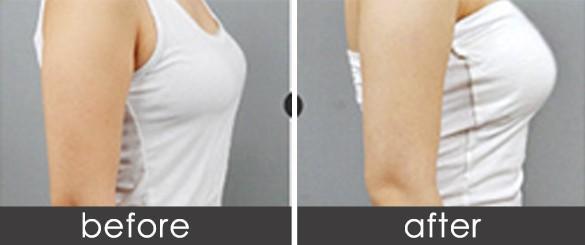 长沙星雅假体隆胸的优点