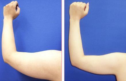 长沙星雅手臂抽脂后多久能消肿