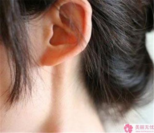 安康永秀杯状耳矫正的手术效果好吗