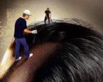 烟台鹏爱头发种植会留疤吗