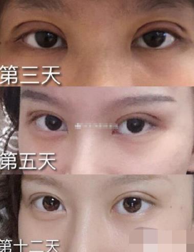 全切双眼皮术后3个月效果对比,很惊艳