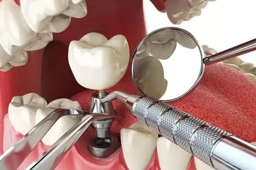 安康永秀种植牙优点是什么