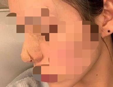 隆鼻手术一个月收获精致翘鼻