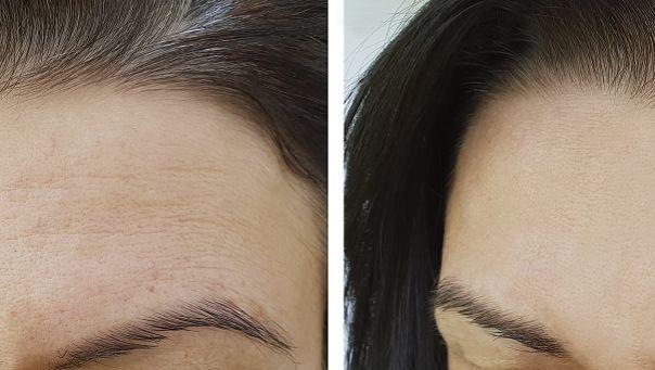 长沙星雅发际线种植术后长出新毛发的时间要多久