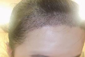 头发种植缓解了我这个年纪不该有的尴尬