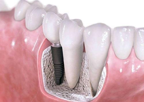 长沙星雅种植牙优点是什么