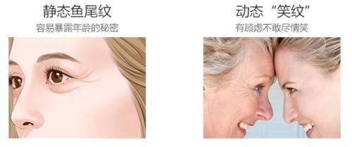 大于40岁,去皱纹,选择北京煤炭总医院的面部悬吊除皱术