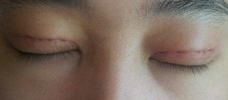 我的双眼皮整形经历