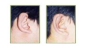 上海首尔丽格杯状耳整形手术的效果