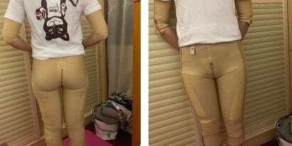 大腿吸脂手术前后各角度照片:术后三个月效果
