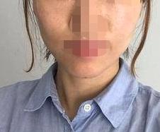 面部埋线,皮肤变得紧致有弹性