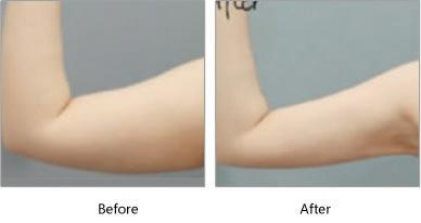 長沙伊百麗手臂吸脂術后有沒有副作用