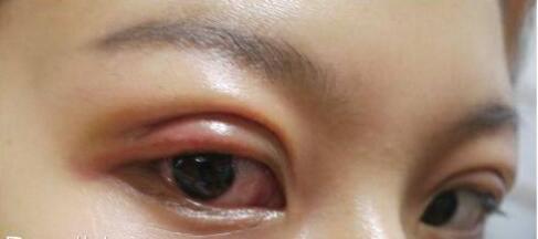 切開雙眼皮手術術后90天