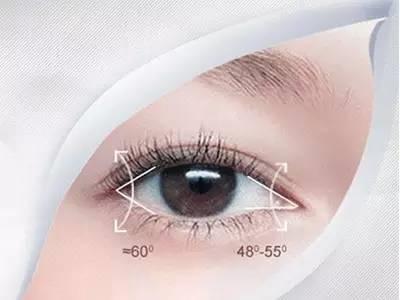 增大雙眼的秘訣-開眼角手術