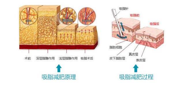 夏天已過半,減肥仍未成,那該怎么辦?廣州荔灣水動力安全吸脂