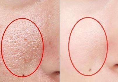 嫩白肌膚收縮毛孔是少不了彩光嫩膚