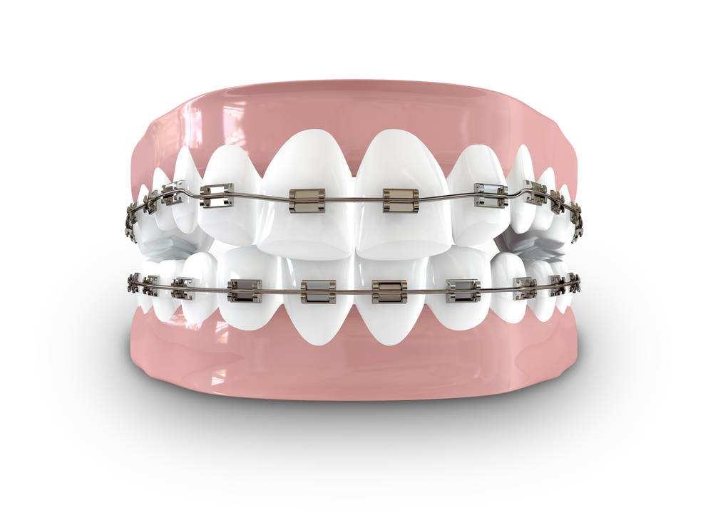 笑出你的強大,南京牙齒矯正的價格