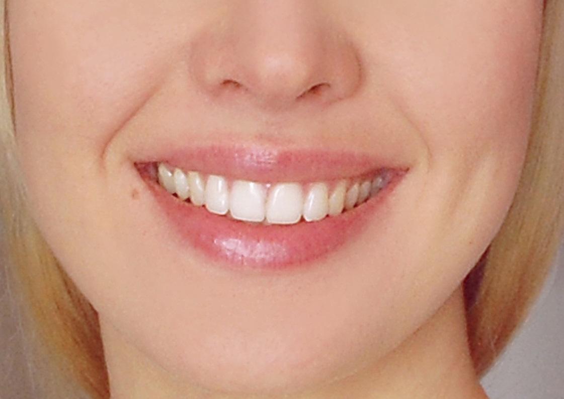 肆意大笑,深圳美加美牙齒隱形矯正