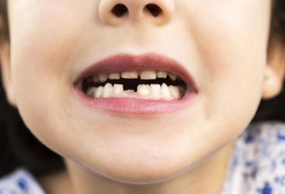 淄博牙齒種植有什么優缺點