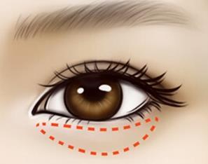 祛眼袋手術有哪些優勢